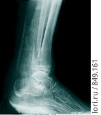 Купить «Рентгеновский снимок перелома ноги», фото № 849161, снято 19 марта 2019 г. (c) Игорь Долгов / Фотобанк Лори