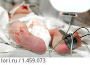 Купить «Новорожденный малыш в инкубаторе», фото № 1459073, снято 21 января 2010 г. (c) Дмитрий Калиновский / Фотобанк Лори