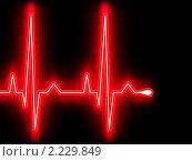 Купить «Электрокардиограмма», иллюстрация № 2229849 (c) Владимир / Фотобанк Лори