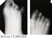 Купить «Остеомиелит V пальца. Секвестр. Патологический перелом», эксклюзивное фото № 3349593, снято 14 апреля 2008 г. (c) Doc... / Фотобанк Лори