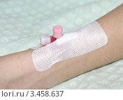 Купить «Катетер - медицинский инструмент», фото № 3458637, снято 21 апреля 2012 г. (c) Павел Кричевцов / Фотобанк Лори