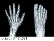 Купить «Рентген кисти и стопы», фото № 3481581, снято 23 января 2019 г. (c) Наталия Евмененко / Фотобанк Лори