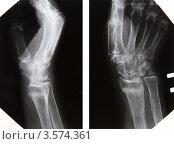 Купить «Перелом шиловидного отростка и метадиафиза лучевой кости. Остеопороз», эксклюзивное фото № 3574361, снято 14 апреля 2008 г. (c) Doc... / Фотобанк Лори