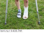 Купить «Ноги маленького мальчика на костылях», фото № 3633741, снято 29 мая 2011 г. (c) Losevsky Pavel / Фотобанк Лори