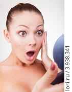 Купить «Молодая девушка с прыщами на лице», фото № 3938341, снято 24 августа 2012 г. (c) Артем Фурман / Фотобанк Лори