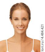 Купить «Красивая девушка с двумя видами загара на лице», фото № 4484421, снято 16 сентября 2012 г. (c) Syda Productions / Фотобанк Лори