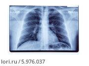Рентгеновский снимок легких на белом фоне. Стоковое фото, фотограф Elisanth / Фотобанк Лори