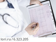 Купить «male doctor hands with cardiogram», фото № 6323205, снято 8 мая 2013 г. (c) Syda Productions / Фотобанк Лори