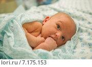 Купить «Потница у новорожденных», фото № 7175153, снято 26 декабря 2014 г. (c) Анастасия Улитко / Фотобанк Лори