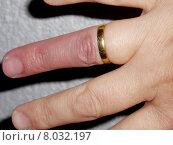 Купить «blue red finger thick bulge», фото № 8032197, снято 26 июня 2019 г. (c) PantherMedia / Фотобанк Лори