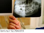 Купить «Врач с рентгеновским снимком», фото № 12704073, снято 4 июля 2008 г. (c) Морозова Татьяна / Фотобанк Лори