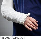 Купить «Перелом руки. Гипс», фото № 12807701, снято 27 сентября 2015 г. (c) Гладских Татьяна / Фотобанк Лори