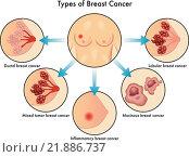 Купить «Types of Breast Cancer», иллюстрация № 21886737 (c) PantherMedia / Фотобанк Лори