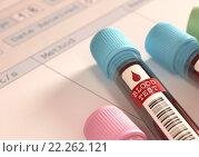 Купить «Blood Test», фото № 22262121, снято 22 января 2019 г. (c) PantherMedia / Фотобанк Лори