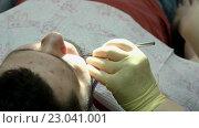 Лечение кариеса. Мужчина посещает стоматолога. Стоковое видео, видеограф ActionStore / Фотобанк Лори