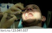 Лечение кариеса. Мужчина на приеме у стоматолога. Стоковое видео, видеограф ActionStore / Фотобанк Лори