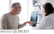 Купить «doctor with spine x-ray and senior man at hospital 72», видеоролик № 23295521, снято 15 июля 2016 г. (c) Syda Productions / Фотобанк Лори
