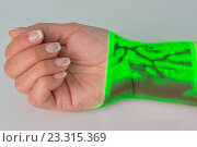 Купить «Венозный рисунок на руке полученный посредством Vein Viever Vision», фото № 23315369, снято 23 июля 2016 г. (c) Anatoly Timofeev / Фотобанк Лори