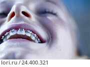 Купить «Child, look, detail, cogs, brace, orthodontic treatment, dentistry, braces, Brackets, jaw regulation, cog technology, orthodontics, odontology, laugh,...», фото № 24400321, снято 17 августа 2018 г. (c) mauritius images / Фотобанк Лори