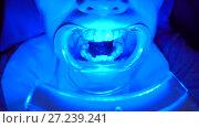 Close-up of special equipment whitening the teeth. Стоковое видео, видеограф Ekaterina Demidova / Фотобанк Лори