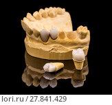 Купить «Dental prosthesis», фото № 27841429, снято 22 апреля 2018 г. (c) PantherMedia / Фотобанк Лори