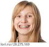 Купить «Девушка показывает брекеты на своих зубах», эксклюзивное фото № 28275169, снято 12 сентября 2010 г. (c) Давид Мзареулян / Фотобанк Лори