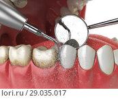Professional teeth cleaning. Ultrasonic teeth cleaning machine delete dental calculus from human teeth. Стоковое фото, фотограф Maksym Yemelyanov / Фотобанк Лори