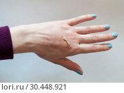 Купить «Thermal burn on a female hand», фото № 30448921, снято 31 марта 2019 г. (c) Землянникова Вероника / Фотобанк Лори