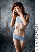 Купить «Anorexic woman, weight loss, anorexia», фото № 30570081, снято 10 января 2018 г. (c) Tryapitsyn Sergiy / Фотобанк Лори