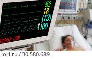 Купить «Медицинский монитор с пациентом на заднем плане», видеоролик № 30580689, снято 14 апреля 2019 г. (c) Beerkoff / Фотобанк Лори