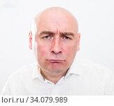 Купить «portrait of bald adult mature man with emotions on white background», фото № 34079989, снято 23 мая 2020 г. (c) Татьяна Яцевич / Фотобанк Лори