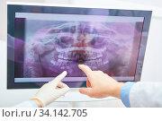 Hände von Zahnärzten zeigen auf Röntgenbild von Gebiss auf einem Monitor in der Diagnostik. Стоковое фото, фотограф Zoonar.com/Robert Kneschke / age Fotostock / Фотобанк Лори