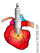 Illustration of a heart in cardiovascular surgery cut with a spark... Стоковое фото, фотограф Zoonar.com/jean-luc cochonneau / easy Fotostock / Фотобанк Лори