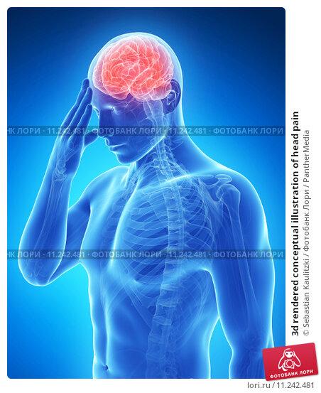 Купить «3d rendered conceptual illustration of head pain», фото № 11242481, снято 22 июля 2019 г. (c) PantherMedia / Фотобанк Лори