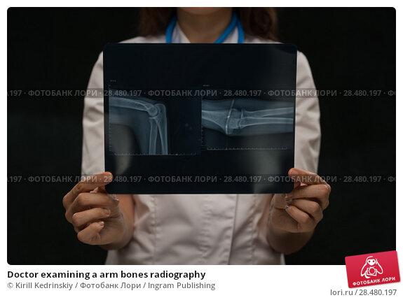 Купить «Doctor examining a arm bones radiography», фото № 28480197, снято 16 мая 2014 г. (c) Ingram Publishing / Фотобанк Лори