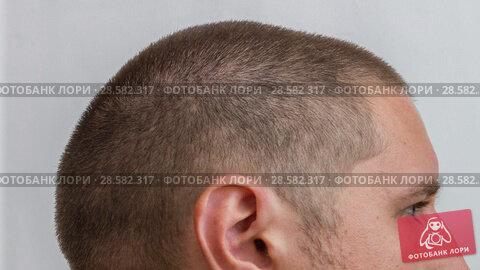 Купить «Male head - process of growing hair of young caucasian man», видеоролик № 28582317, снято 18 января 2019 г. (c) Константин Шишкин / Фотобанк Лори