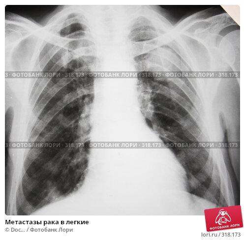Метастазы рака в легкие, фото № 318173, снято 10 июня 2008 г. (c) Doc... / Фотобанк Лори