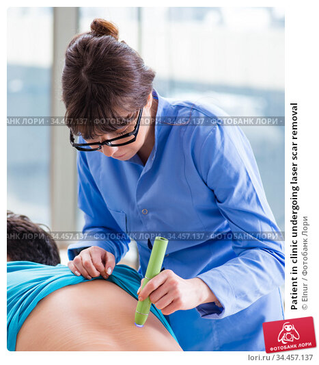Patient in clinic undergoing laser scar removal. Стоковое фото, фотограф Elnur / Фотобанк Лори