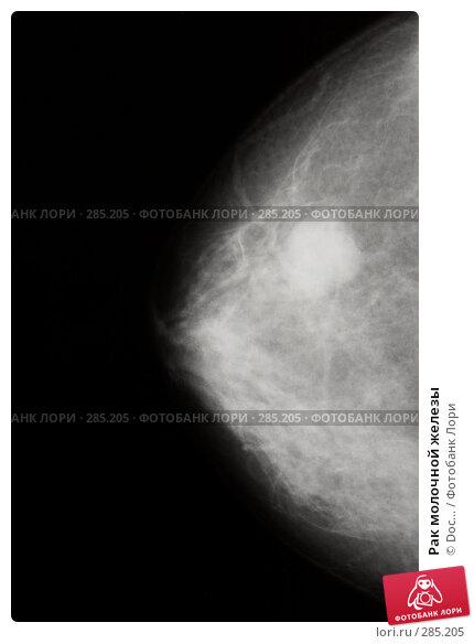 Рак молочной железы, фото № 285205, снято 30 апреля 2008 г. (c) Doc... / Фотобанк Лори