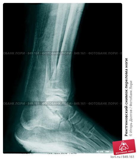 Купить «Рентгеновский снимок перелома ноги», фото № 849161, снято 10 января 2019 г. (c) Игорь Долгов / Фотобанк Лори