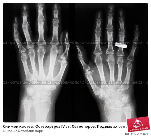 Снимок кистей: Остеоартроз IV ст. Остеопороз. Подвывих основной фаланги IV пальца., фото № 293021, снято 20 мая 2008 г. (c) Doc... / Фотобанк Лори