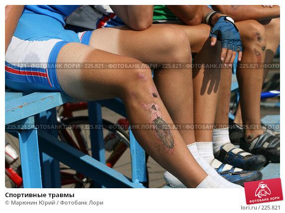 Спортивные травмы, фото № 225821, снято 8 августа 2007 г. (c) Марюнин Юрий / Фотобанк Лори