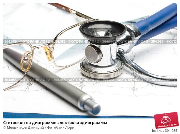 Купить «Стетоскоп на диаграмме электрокардиограммы», фото № 304085, снято 21 мая 2008 г. (c) Мельников Дмитрий / Фотобанк Лори