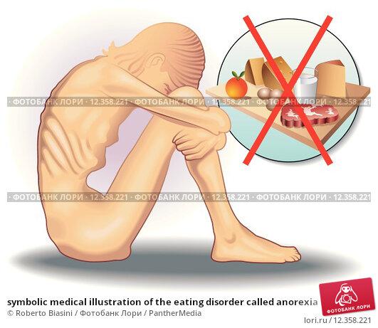 Купить «symbolic medical illustration of the eating disorder called anorexia», иллюстрация № 12358221 (c) PantherMedia / Фотобанк Лори