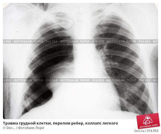 Травма грудной клетки, перелом ребер, коллапс легкого, фото № 314953, снято 8 июня 2008 г. (c) Doc... / Фотобанк Лори